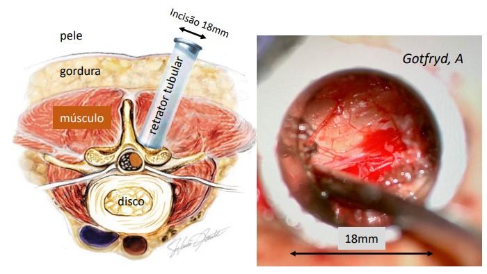 Descompressão Tubular Lombar Minimamente Invasiva