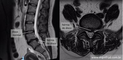 Ressonância magnética: exame de escolha para confirmar diagnóstico de hérnia de disco.