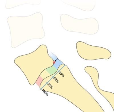 Espondilólise e espondilolistese lombar.