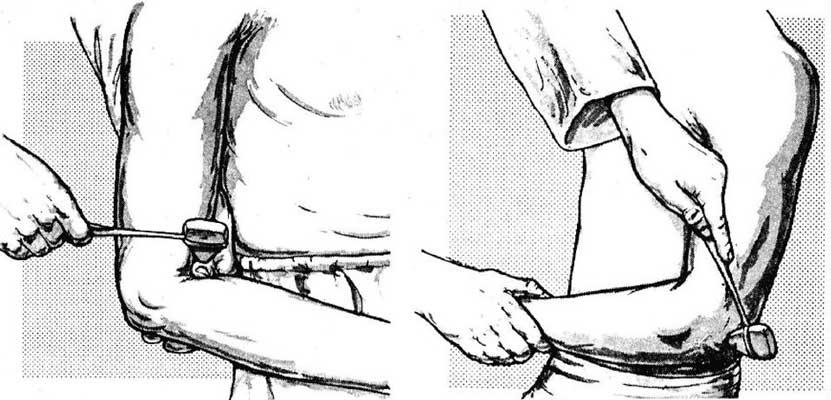 Duas imagens de testes de reflexos diferentes nos membros superiores.
