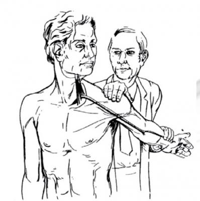 Imagem de exame físico de coluna de Teste de Adson.