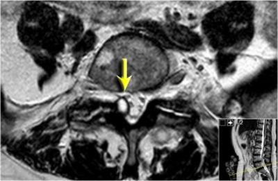 Ressonância magnética da coluna