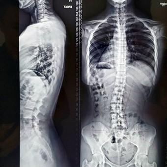Radiografia panorâmica da coluna é exame importante para avaliação do alinhamento vertebral.